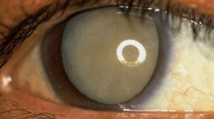 Closeup of a Mature Cataract in an Eye